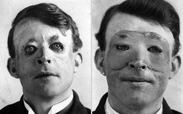 21-Walter-Yeo-one-of-the-first-to-undergo-an-advanced-plastic-surgery-and-a-skin-transplant-1917