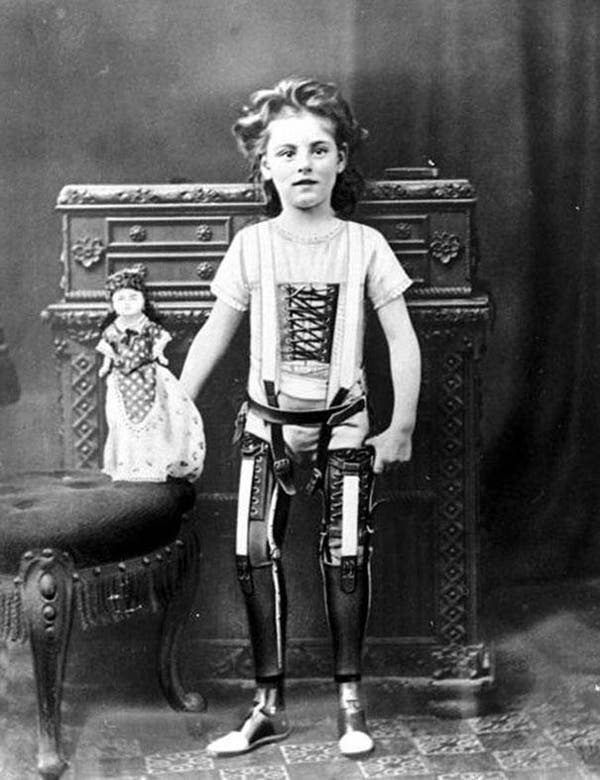 27-Artificial-legs-UK-ca-1890