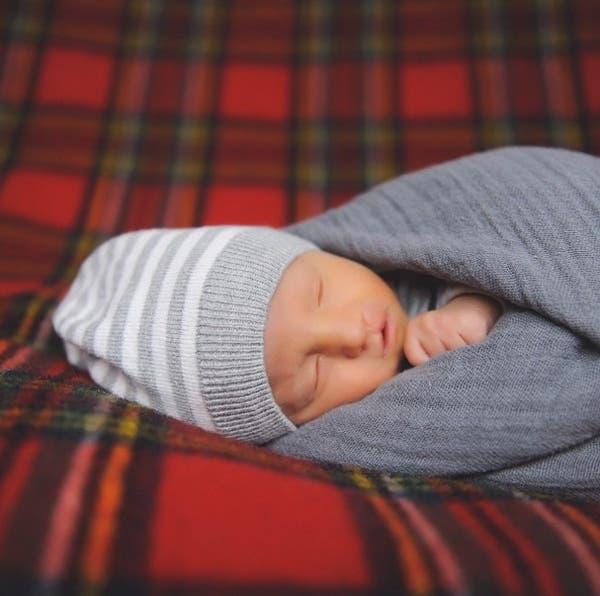 bebe milagro trisomia 18 -4