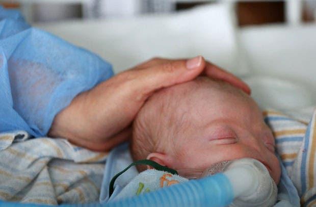 bebé-nacio-sin-nariz-conmovedor