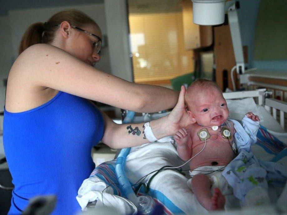 bebé-nacio-sin-nariz-shock