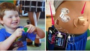 Niño-pancreas-artificial