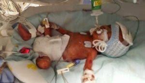 bebe-prematuro-vida-milagro