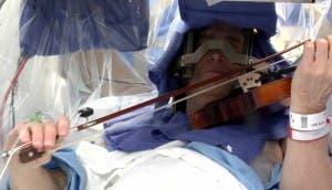violinista-impresionante-cirugía-cerebral