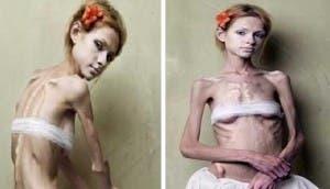 trastornos-anorexia-bulimia -