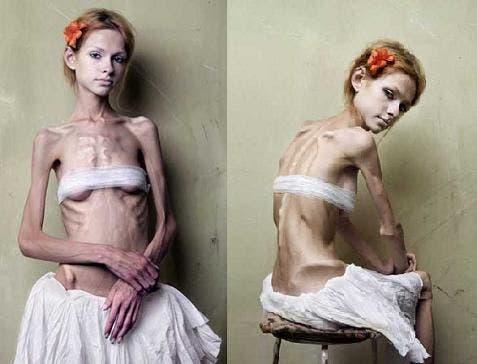 trastornos-anorexia-bulimia