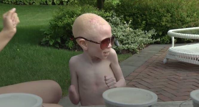 ataques-albinos2