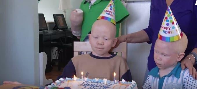 ataques-albinos9