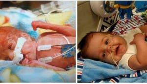 bebe-prematuro-