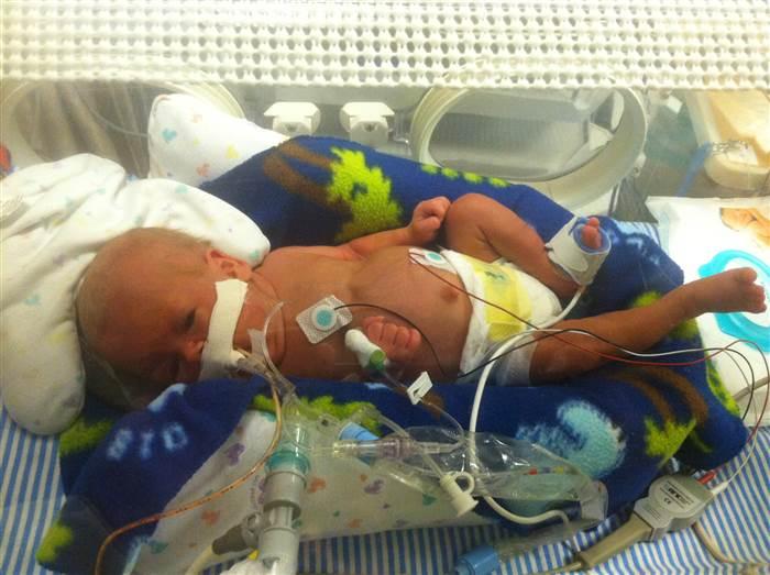 bebe-prematuro-milagro-4