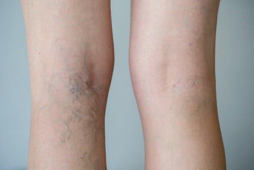 jeans-ajustados-malos-para-la-salud3