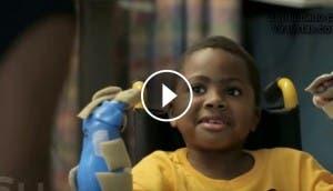 transplante-bilateral-de-manos