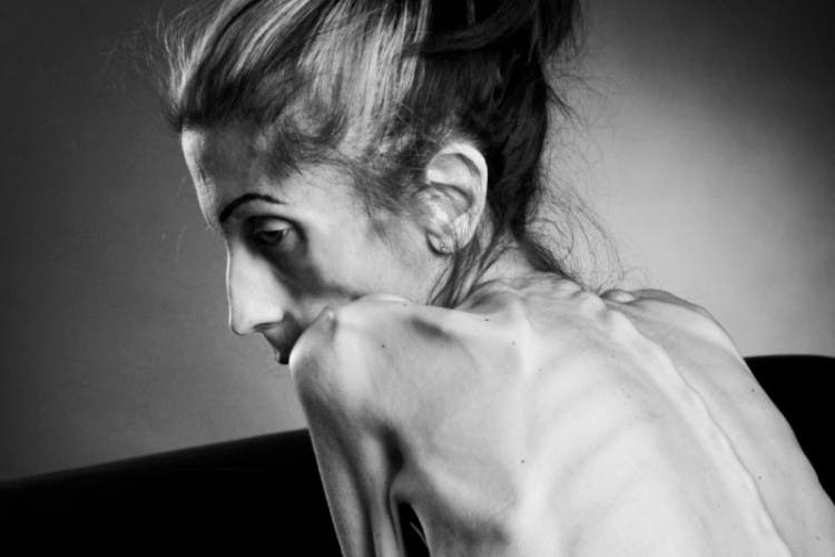 rachel-farrokh-supera-terrible-caso-anorexia-1