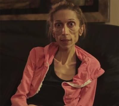 rachel-farrokh-supera-terrible-caso-anorexia-2
