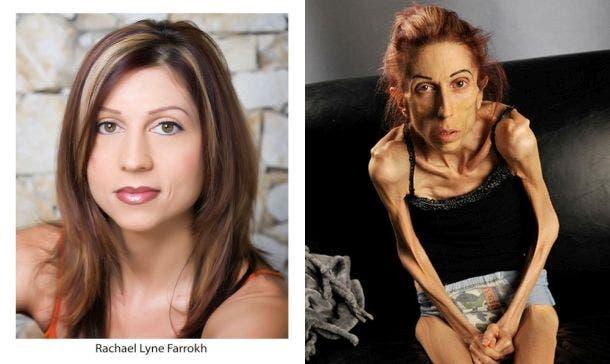 rachel-farrokh-supera-terrible-caso-anorexia-6