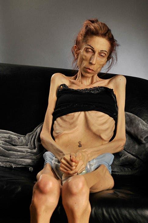 rachel-farrokh-supera-terrible-caso-anorexia-7