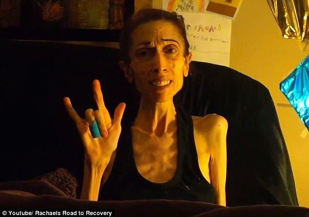 rachel-farrokh-supera-terrible-caso-anorexia-8