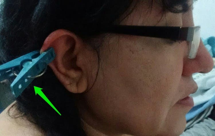 auriculoterapia-para-principiantes4