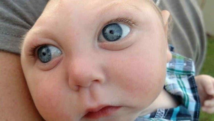 bebe-que-nacio-sin-parte-del-craneo-conoce-a-santa2