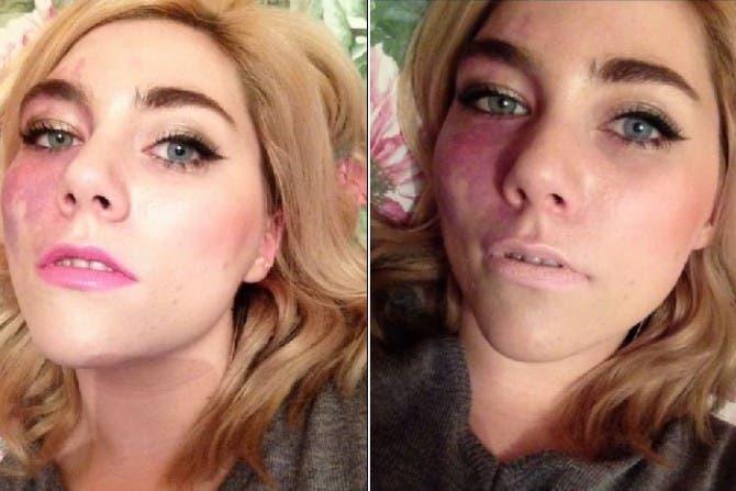 Ella nació con una gran marca en su rostro y siempre la ocultaba ¡Pero un día todo cambió!