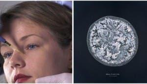 lagrimas-microscopio12 - copia