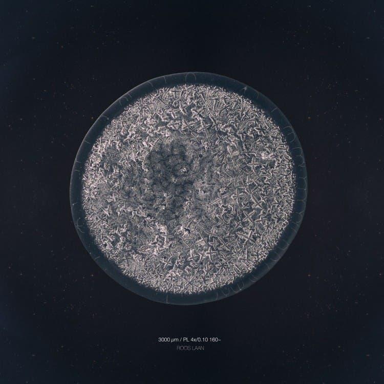 lagrimas-microscopio7