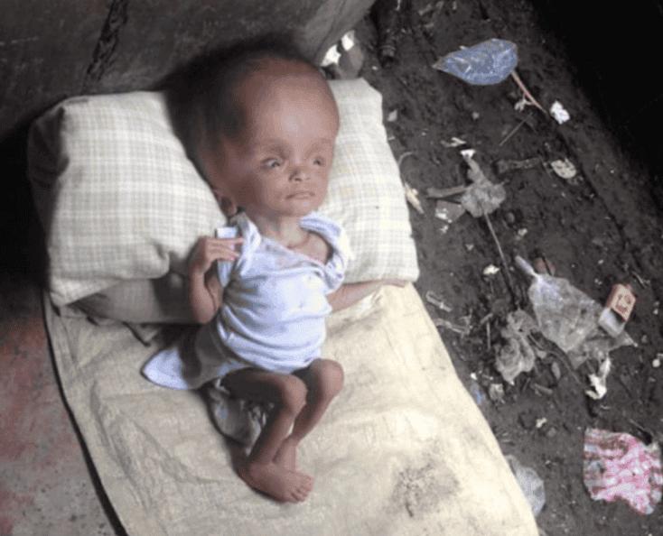 bebe-rescatado-24-meses-despues8