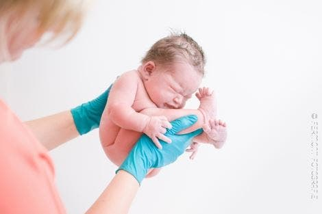 bebes p fetal 4