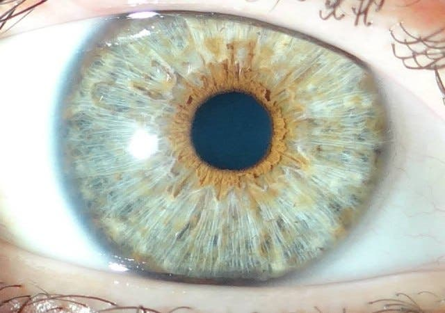 operacion-para-tener-los-ojos-azules2