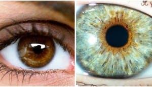 operacion-para-tener-los-ojos-azules6