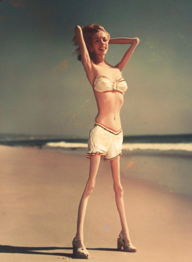 anorexia10