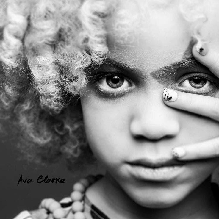 ava-clarke-modelo-albina-afroamericana1