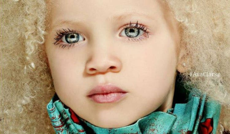 ava-clarke-modelo-albina-afroamericana11