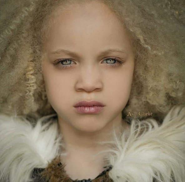 ava-clarke-modelo-albina-afroamericana12