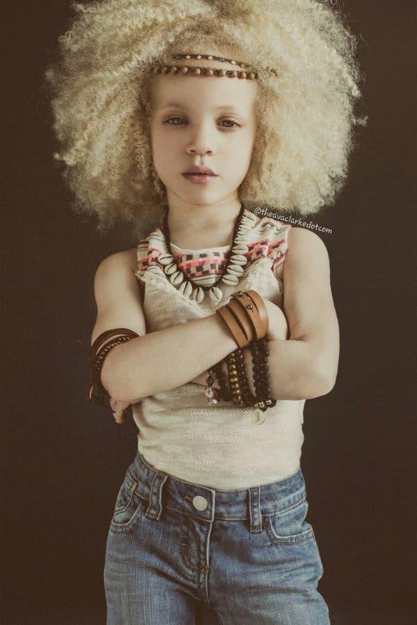 ava-clarke-modelo-albina-afroamericana3
