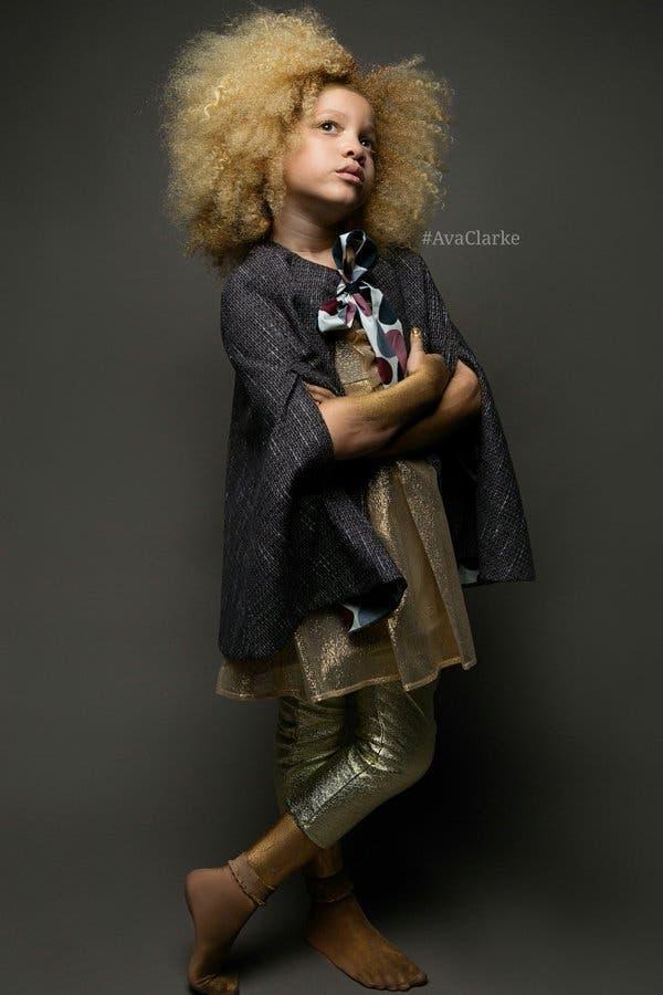 ava-clarke-modelo-albina-afroamericana6