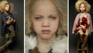 ava-clarke-modelo-albina-afroamericana7 - Copy