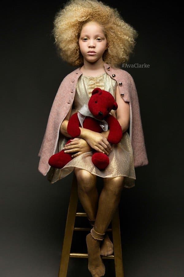 ava-clarke-modelo-albina-afroamericana7