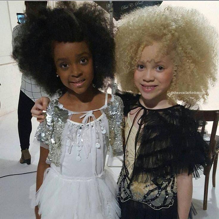ava-clarke-modelo-albina-afroamericana9
