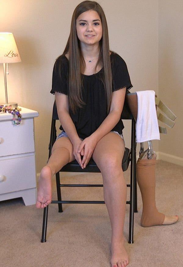 bailarina-de-14-anos-protesis1