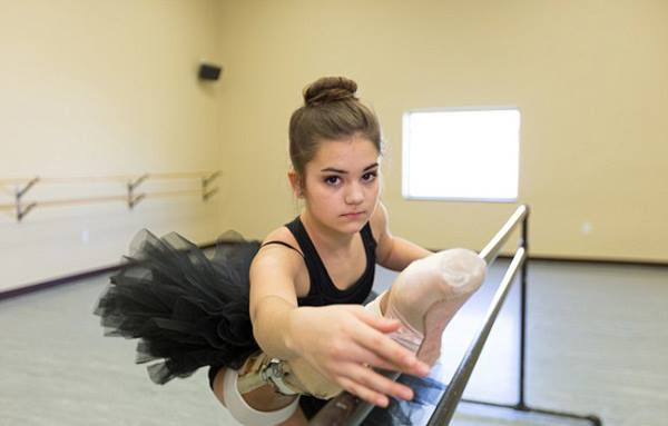 bailarina-de-14-anos-protesis3