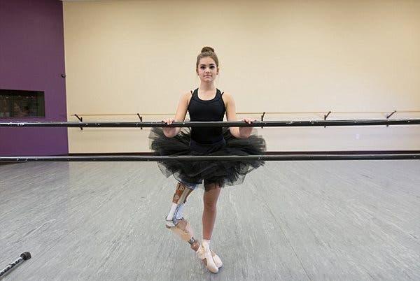 bailarina-de-14-anos-protesis4