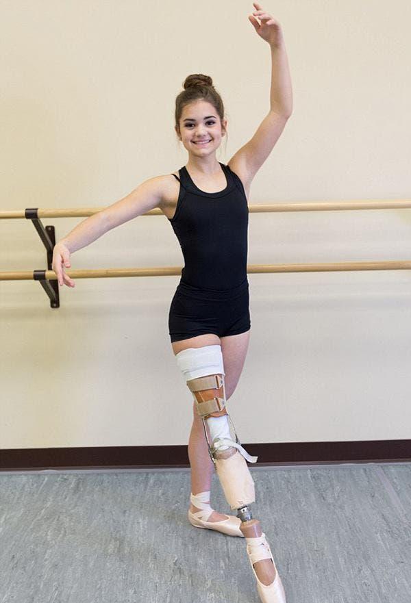 bailarina-de-14-anos-protesis8