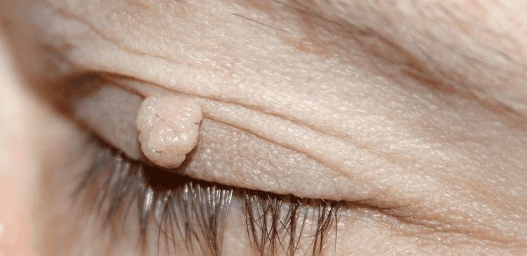 verrugas-1