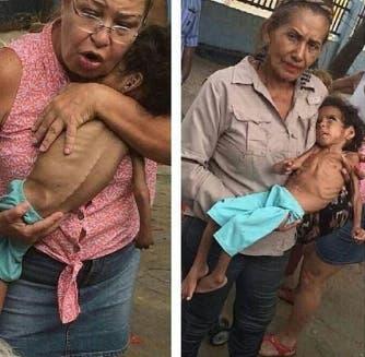 desnutricion-ninos-venezuela1
