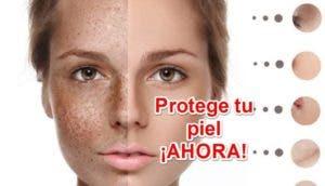 proteger piel id