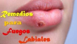 remedios-para-herpes-labial