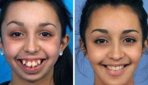 transformacion-de-chica-con-deformidad-facial1 - Copy
