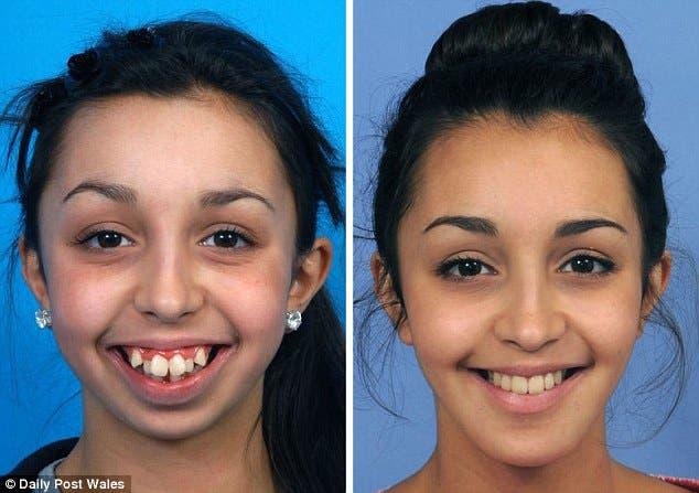 transformacion-de-chica-con-deformidad-facial1