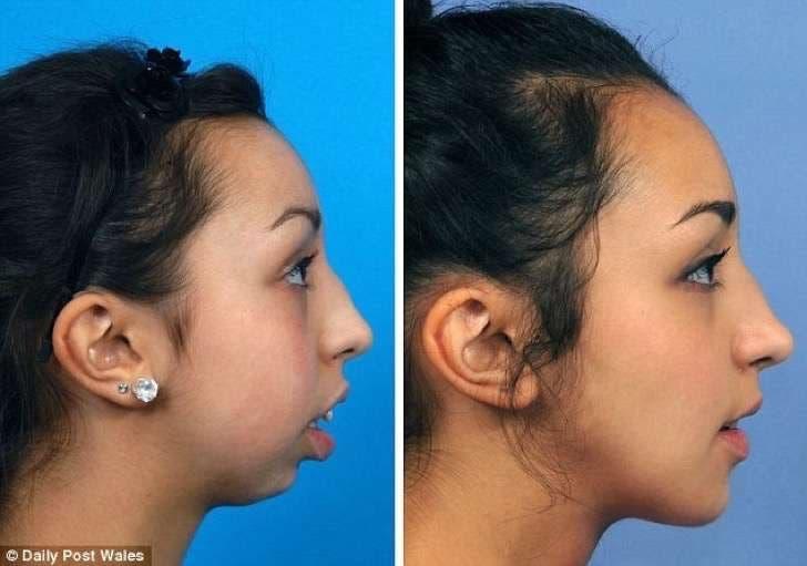 transformacion-de-chica-con-deformidad-facial3